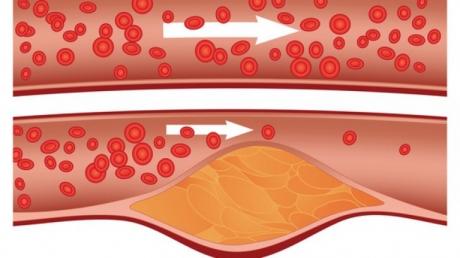 Cum poţi să scapi de colesterolul ridicat: Alimentele minune care te ajută să îţi rezolvi problemele