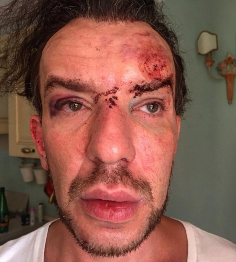 Atenție, imagini ȘOCANTE - Un CELEBRU designer român a fost bătut CRUNT și jefuit la Cannes